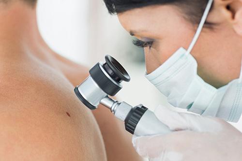 онколог-дерматолог